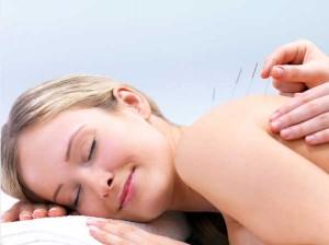 acupuntura oferta marzo