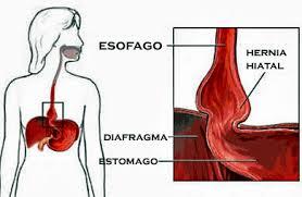 descripción gráfica hernia de hiato