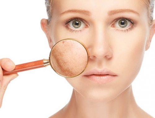Tratamiento de las manchas faciales